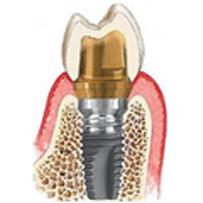 Implantes, Enxertos e Reconstruções