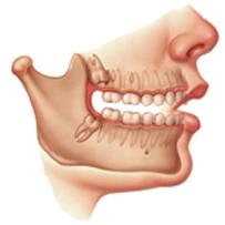 Cirurgia dos dentes inclusos / dente do siso