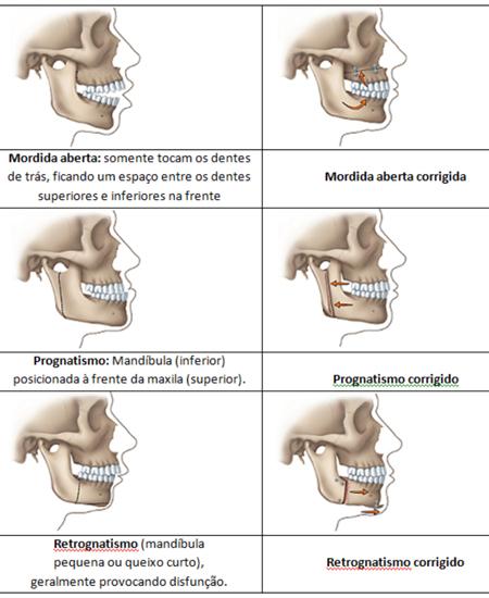 Demonstração de Cirurgia Ortognática