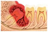Demonstração de cirurgia dos dentes inclusos / dente do siso